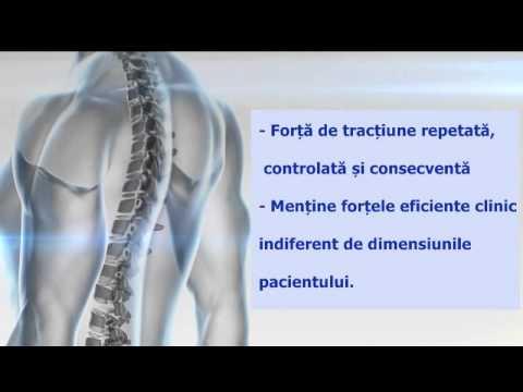 artroza coxă a șoldului)