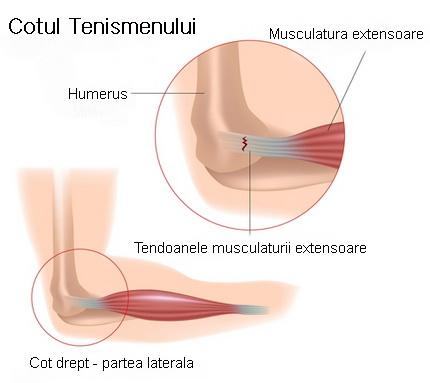 afectarea tendoanelor în simptomele articulației cotului