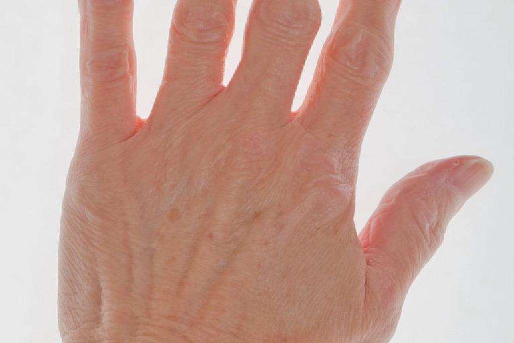 semne de artrită pe degete