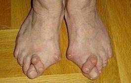 artrita metatarsica piciorului)