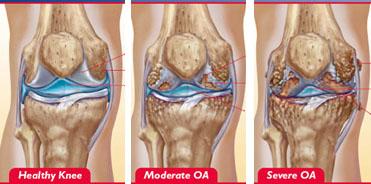 gonartroza bilaterală a genunchiului tratamentului de gradul I