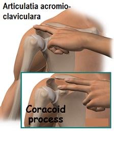 inflamația articulară claviculară a tendoanelor tratamentului periostic)