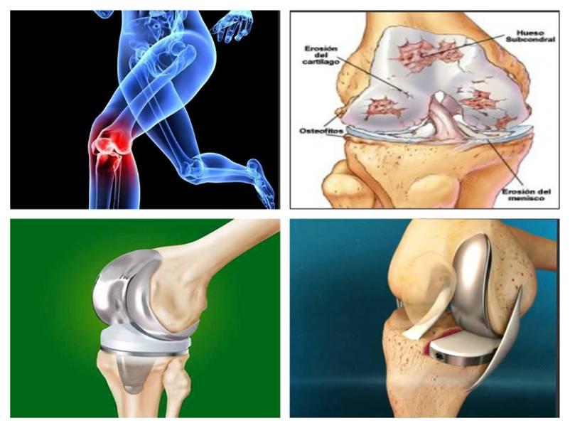 kinezoterapie a genunchiului în artroză