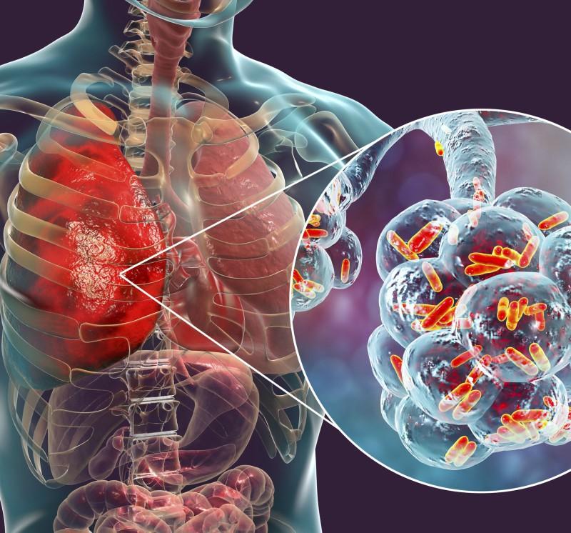 Klebsiella și boala articulară