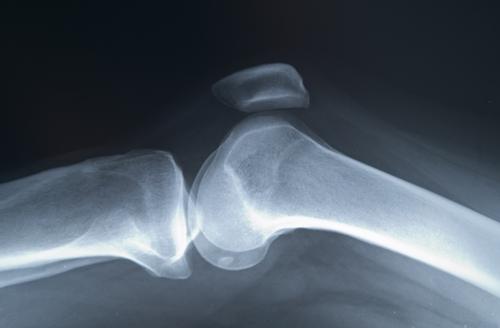 crize și dureri în articulațiile umerilor și articulațiile șoldului rănesc noaptea