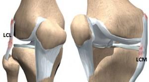 ligamentul lateral al restaurării genunchiului