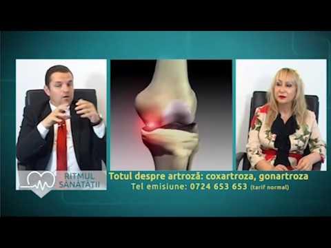 locuri pentru tratarea artrozei