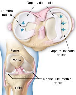 meniscus leziune a diagnosticului articulației genunchiului)