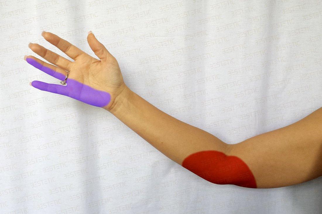 neurita articulației cotului simptomelor tratament