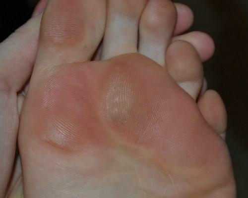 porumb pe articulația inflamației degetelor de la picioare cum se tratează artroza genunchiului în stadiul inițial