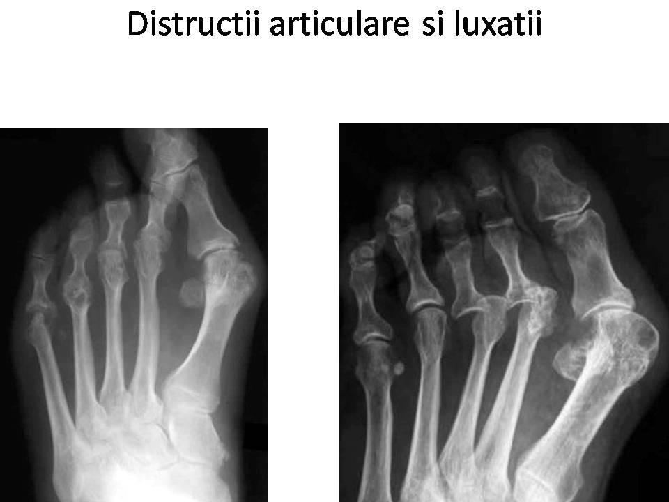 radiografie a articulațiilor în artrita reumatoidă