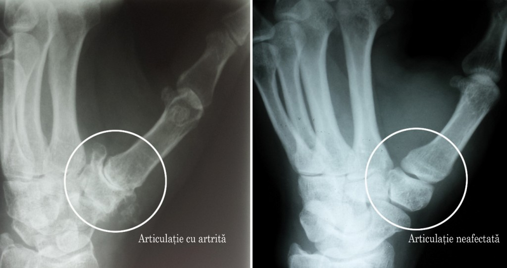 care este tratamentul pentru artroza articulației cotului