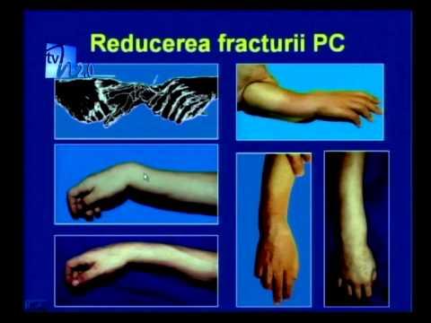 durerea articulației claviculare superioare dureri la articulații cum să ajute
