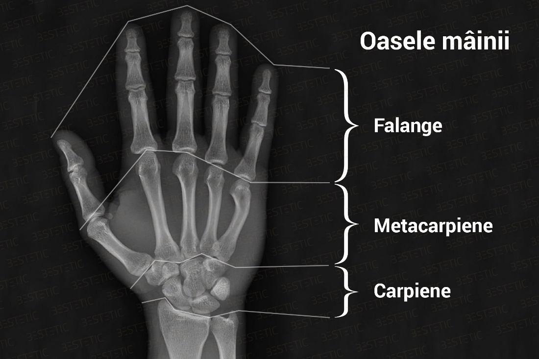 refacerea articulației după luxarea degetului)