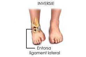 leziuni ale ligamentului genunchiului miron