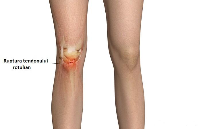 ruperea tendoanelor articulației genunchiului cum să se trateze