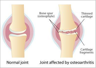 semne de artroză a articulațiilor vertebrale costale