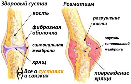 симптомы и лечение ревматизма в бедре simptome ale leziunilor de gleznă