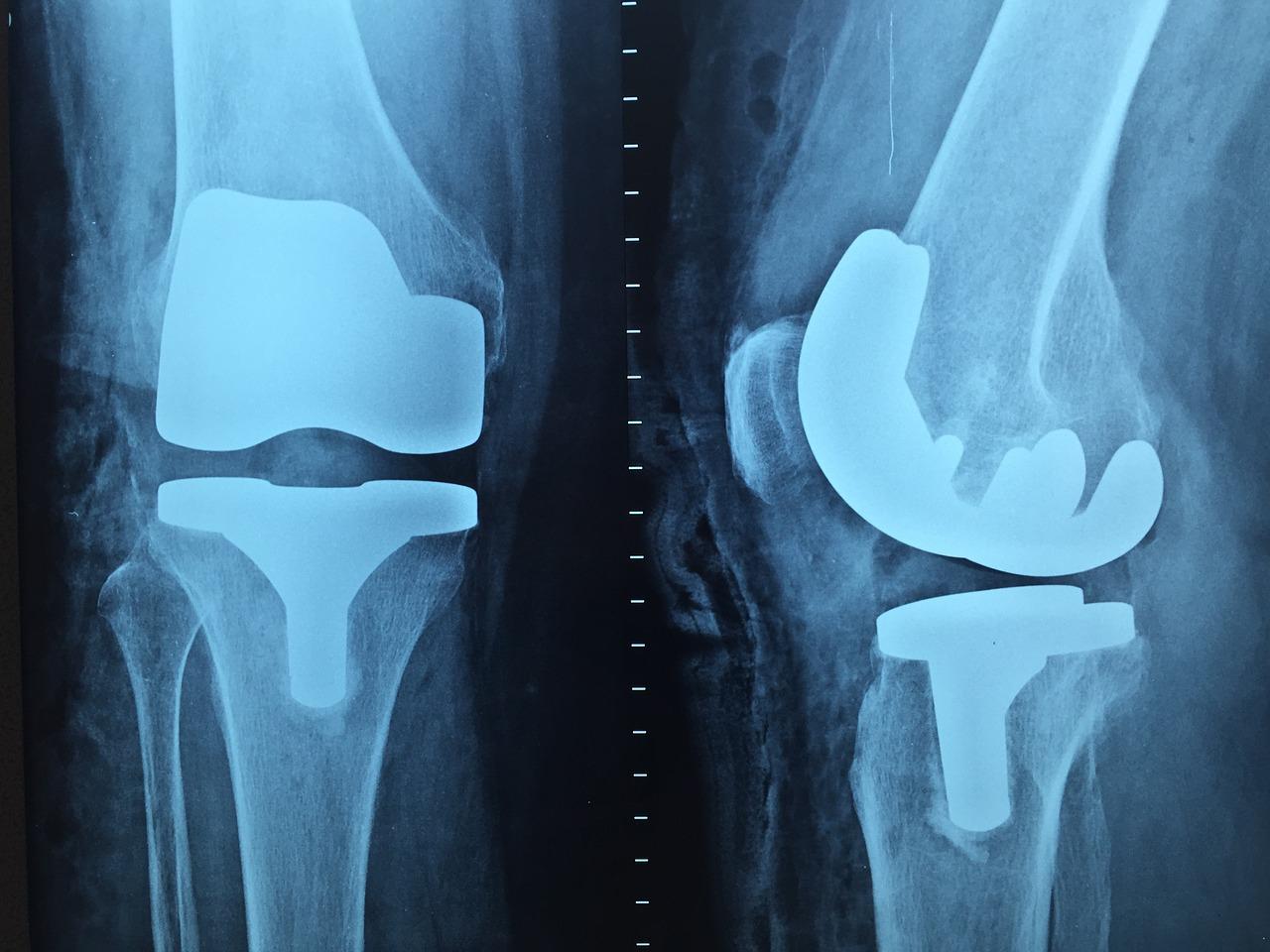 tratament pentru răni care pătrund în articulație