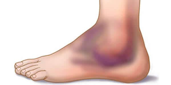 tratamentul bolii articulației gleznei