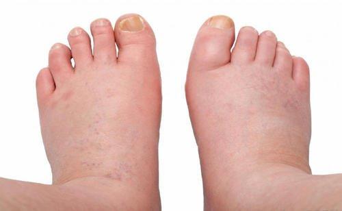 5 tratamente pentru picioare și glezne umflate - Doza de Sănătate