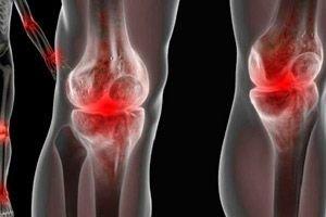 unguent nou pentru articulații care tratează edemele genunchiului