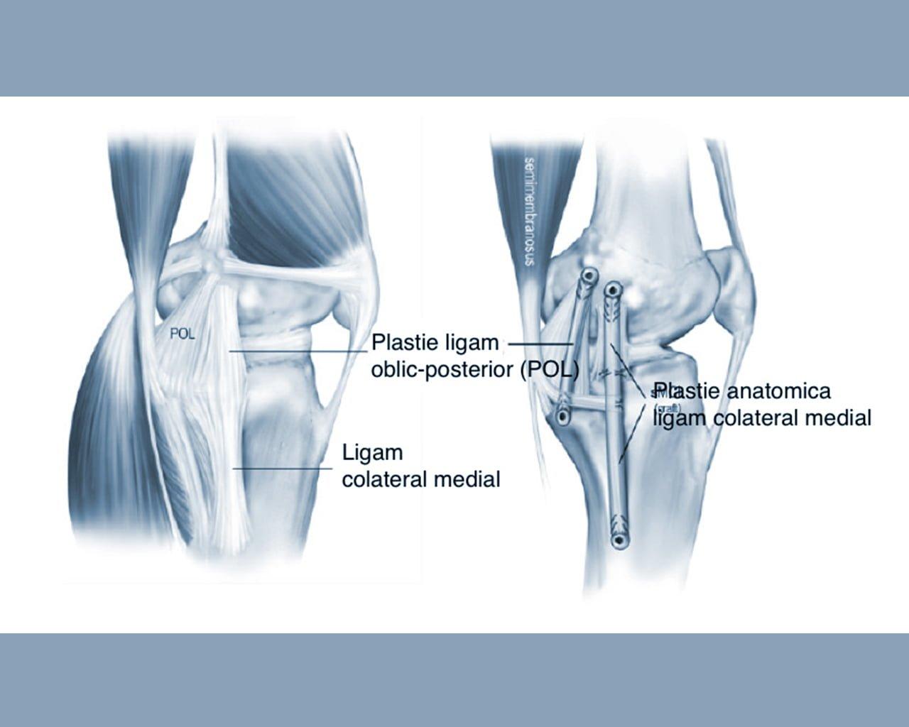 dacă articulația doare cum să trateze Pentru ce este condroitina glucozamină?