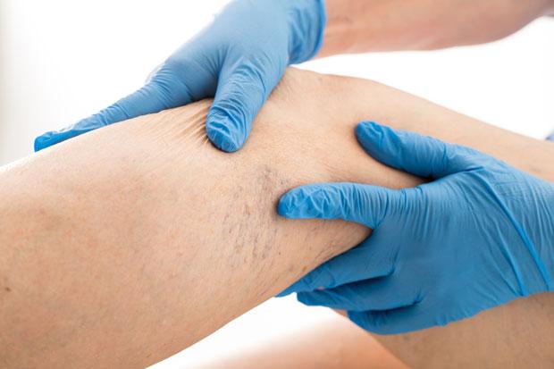 de ce rănesc articulațiile mâinilor în coate dureri articulare la copii cu creștere