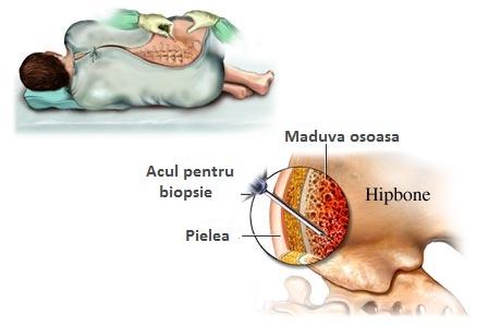 tratarea artrozei cu celule stem și a artritei