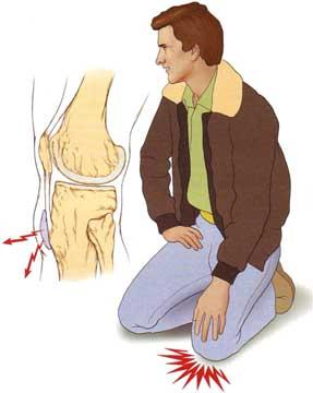 umflarea țesutului moale a genunchiului