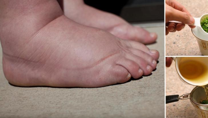 De ce se umfla picioarele vara?