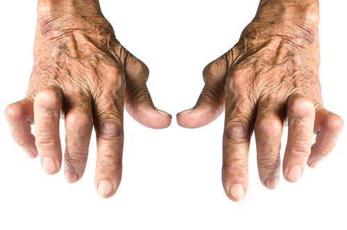 tratamentul artritei reumatoide la degete)