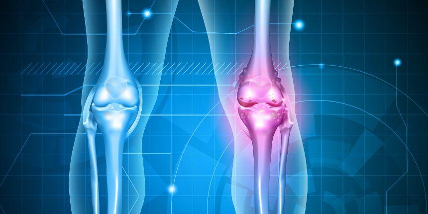 artroza progresivă a genunchiului