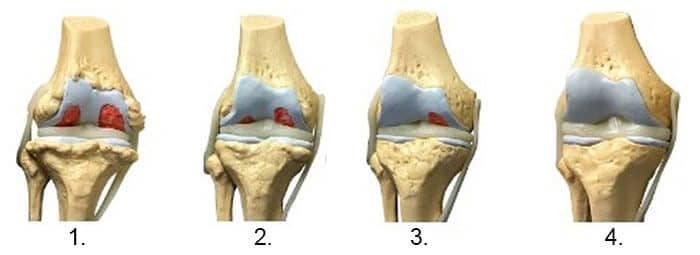 artroza articulației gleznei 4 grade