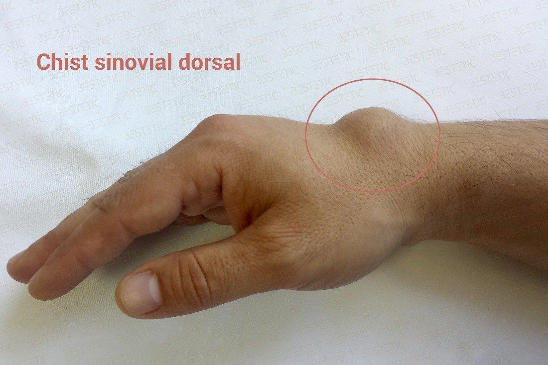 articulație dureroasă pe degetul mic al mâinii stângi)