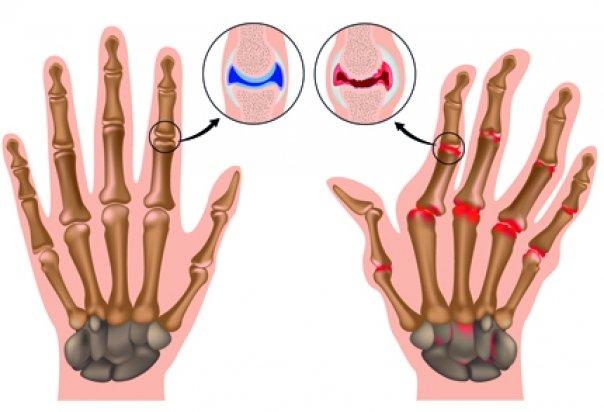reumatismul bolii articulare)