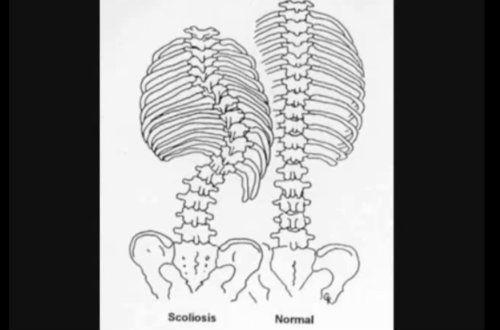 plante medicinale pentru tratamentul articulațiilor și coloanei vertebrale)