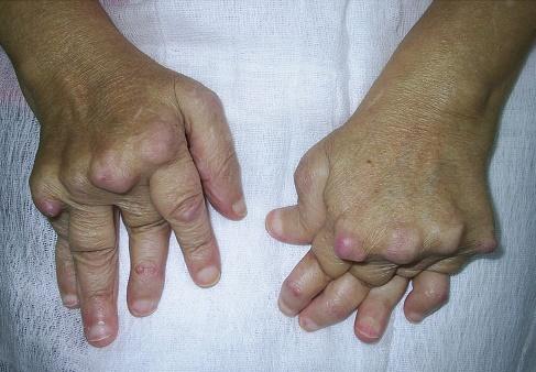 modificări articulare externe în artrita reumatoidă