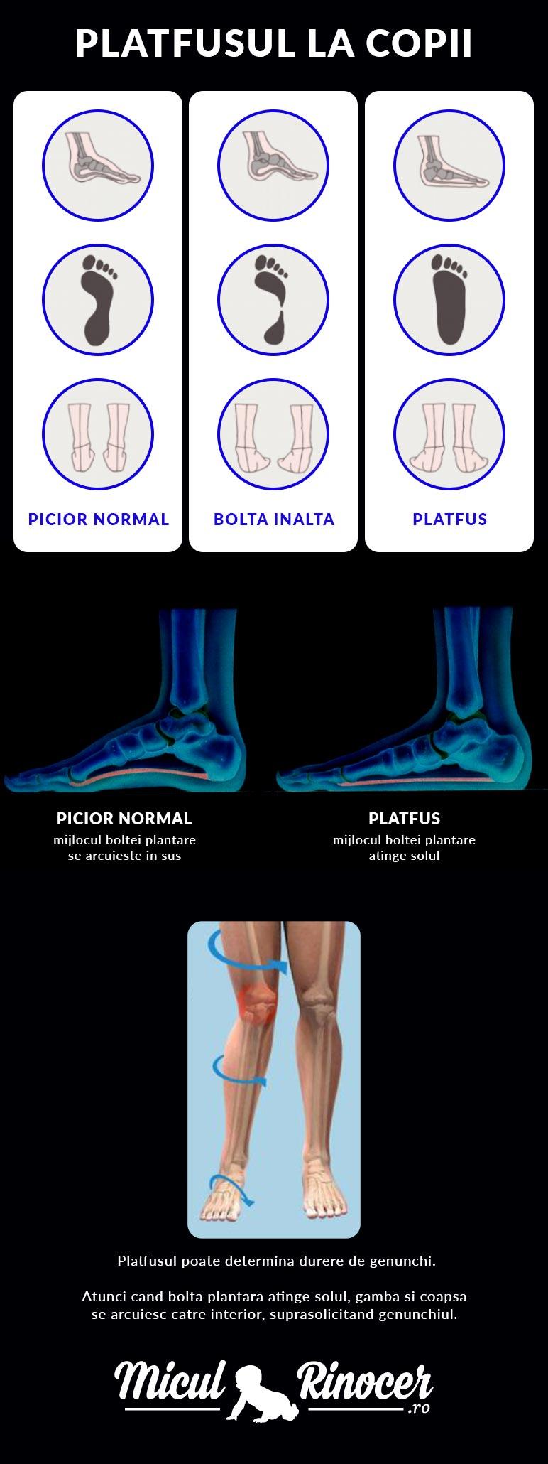 durere în articulațiile piciorului la copii)