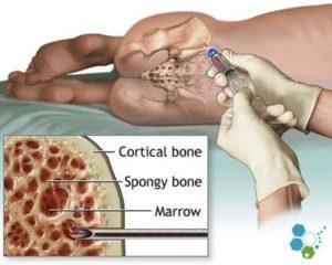 medicamente osteocondroza articulațiile degetelor doare la 30 de ani