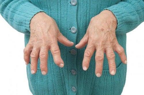 ce plante tratează artrita reumatoidă
