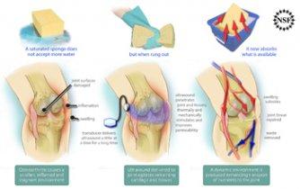tratament cu articulații cu ultrasunete