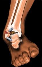umflarea articulației gleznei după fractură