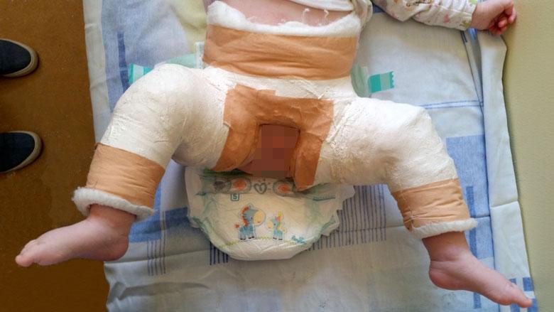Ecografia de șold și displazia de dezvoltare a șoldului la nou-născuți și sugari