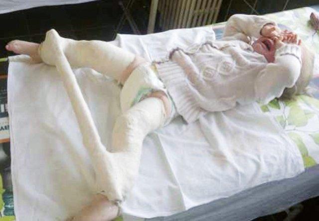 Displazia de sold la bebelus - cauze, diagnostic si tratament. | centru-respiro.ro