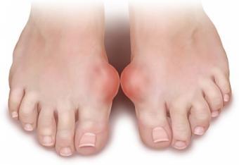 artrita guta a tratamentului articulației cotului
