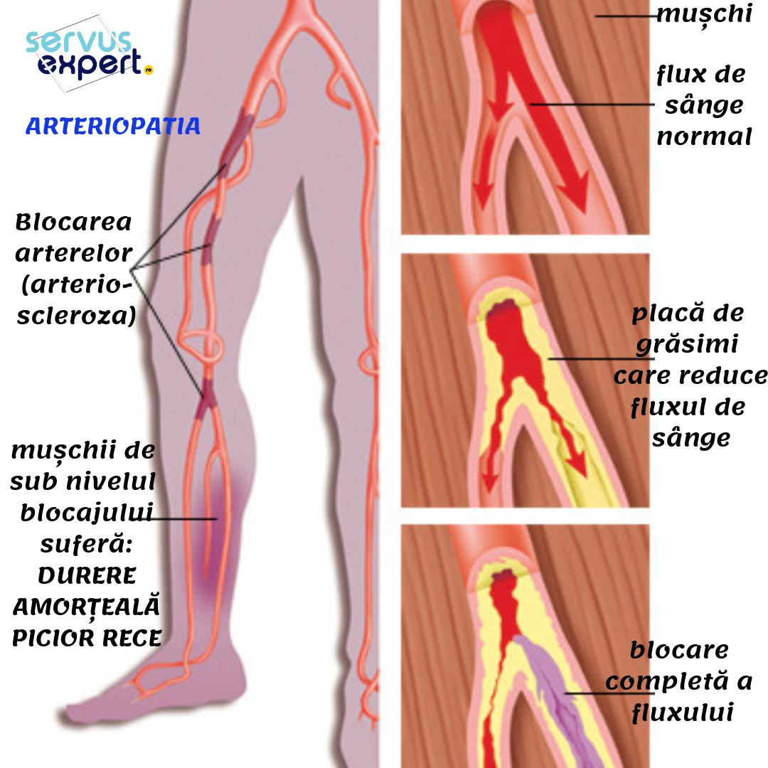 articulațiile din picioare doare ce să facă