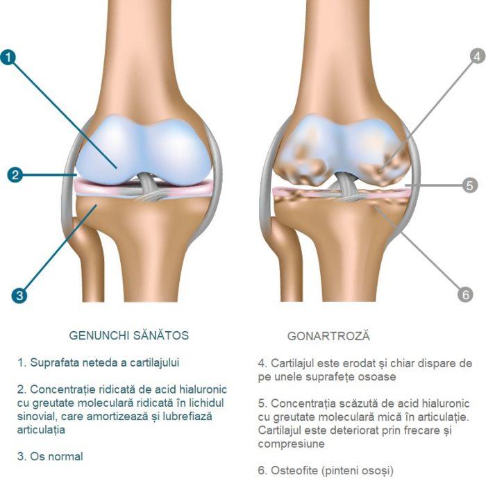 este tratată cu artrită la genunchi)