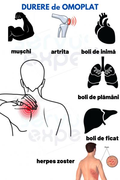 Articulația în omoplatul stâng doare, Brațul dreaptă în
