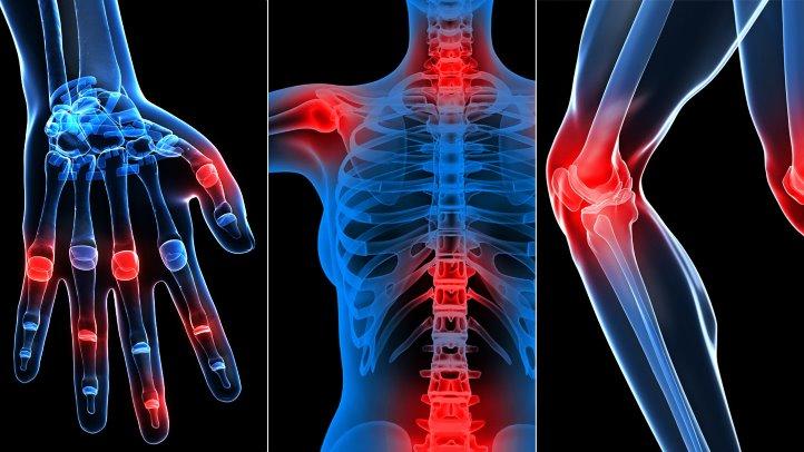 artroza spondilartrozei a articulațiilor coloanei vertebrale)